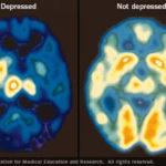 Antidepressivi: Impariamo a Conoscerli